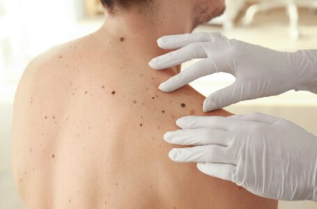 How to identify and deal with a cancerous mole
