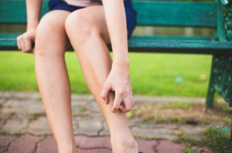 5 tips to stop mosquito bites from itching